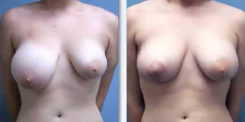 Asimetrie mamara inainte si dupa caz 16