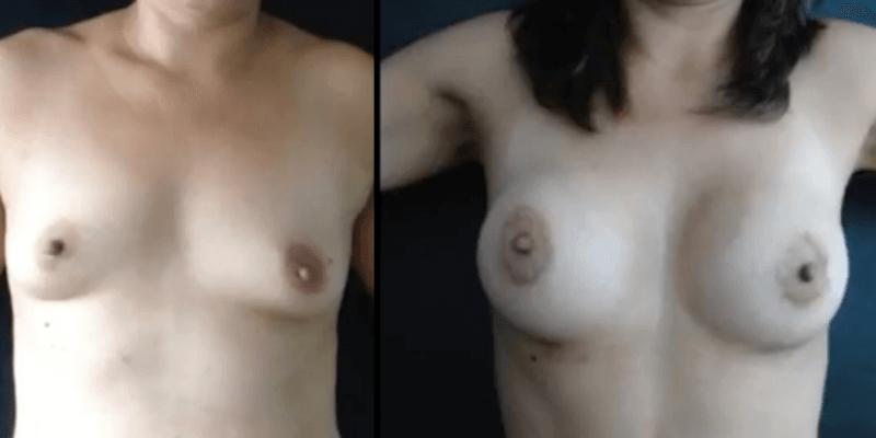 Asimetrie mamara inainte si dupa caz 57-1