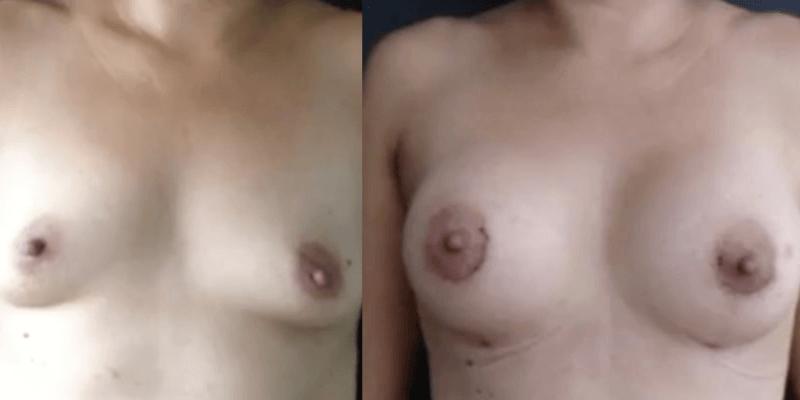 Asimetrie mamara inainte si dupa caz 57-2