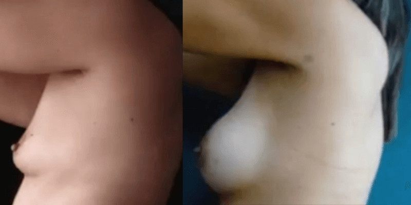 Asimetrie mamara inainte si dupa caz 57-3
