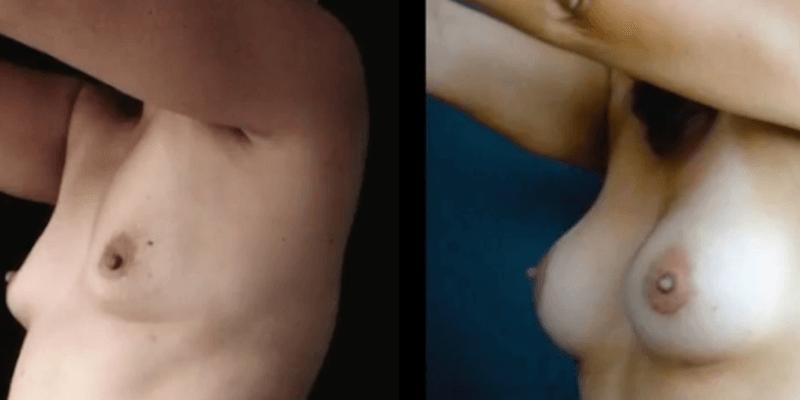 Asimetrie mamara inainte si dupa caz 57-4