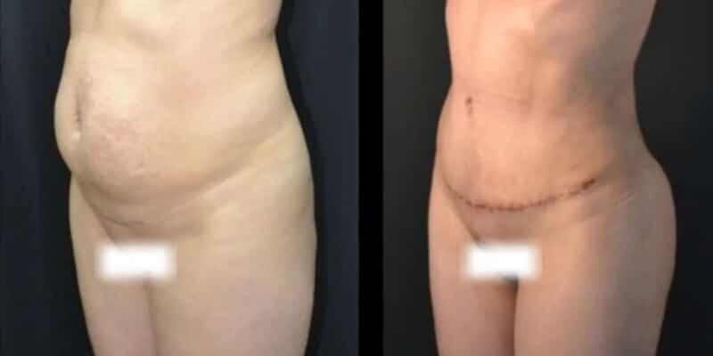 Liposuctie inainte si dupa caz 109-2