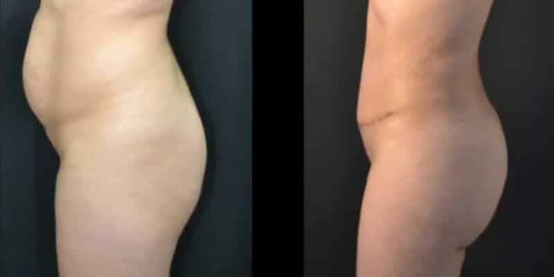 Liposuctie inainte si dupa caz 109-3