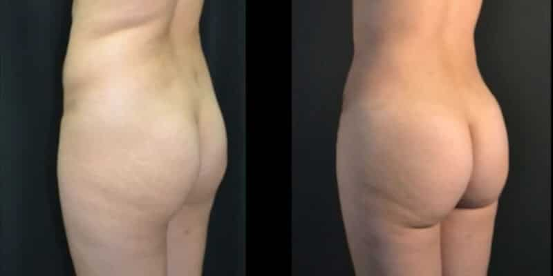 Liposuctie inainte si dupa caz 109-4