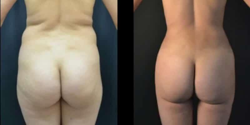 Liposuctie inainte si dupa caz 109-5