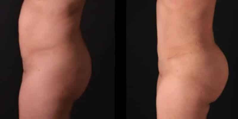 Liposuctie inainte si dupa caz 114-4