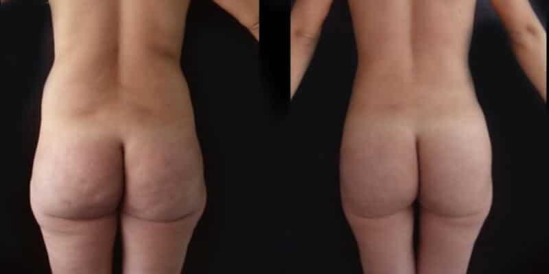Liposuctie inainte si dupa caz 17-1