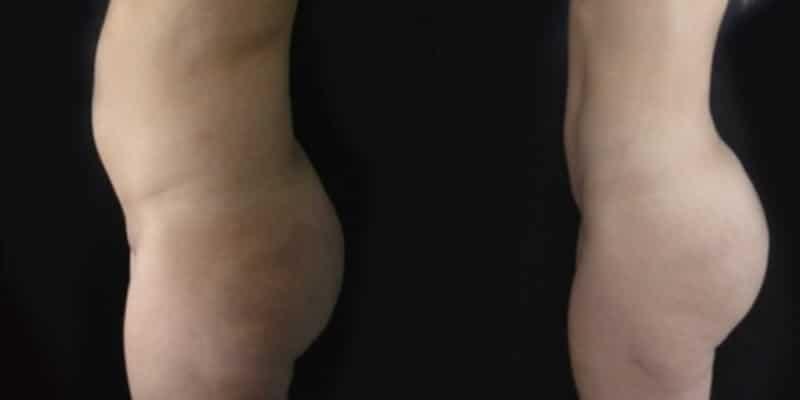 Liposuctie inainte si dupa caz 17-2