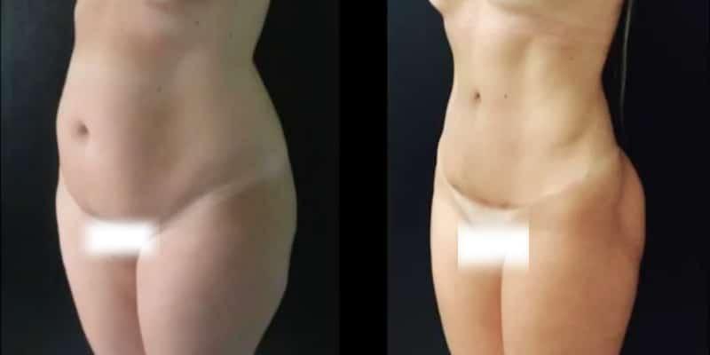Liposuctie inainte si dupa caz 53-1