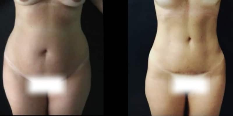 Liposuctie inainte si dupa caz 53-2