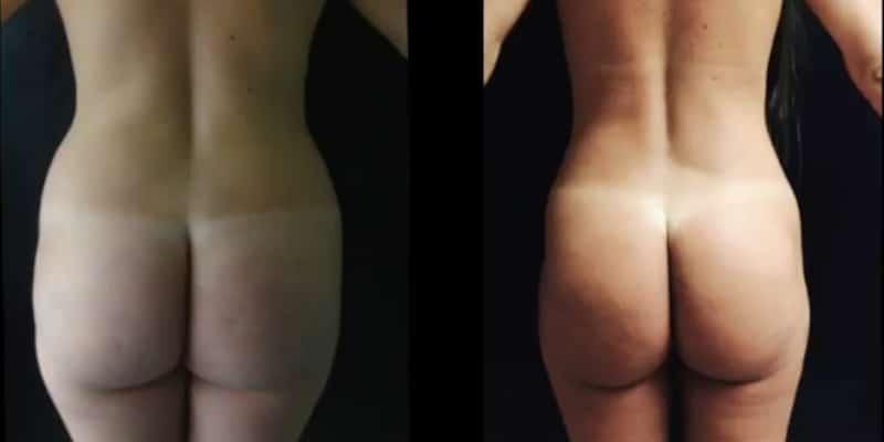 Liposuctie inainte si dupa caz 53-4