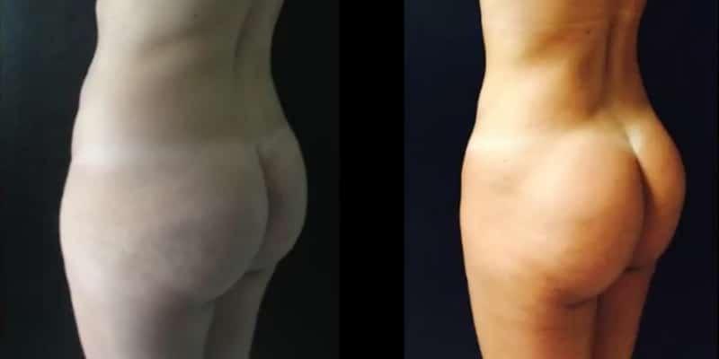 Liposuctie inainte si dupa caz 53-5