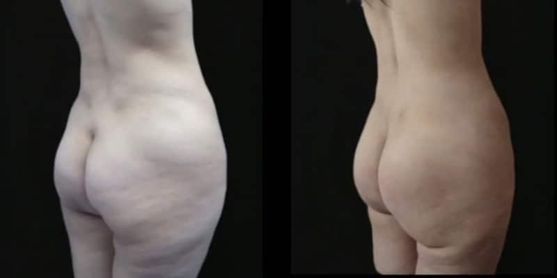 Liposuctie inainte si dupa caz 59-2