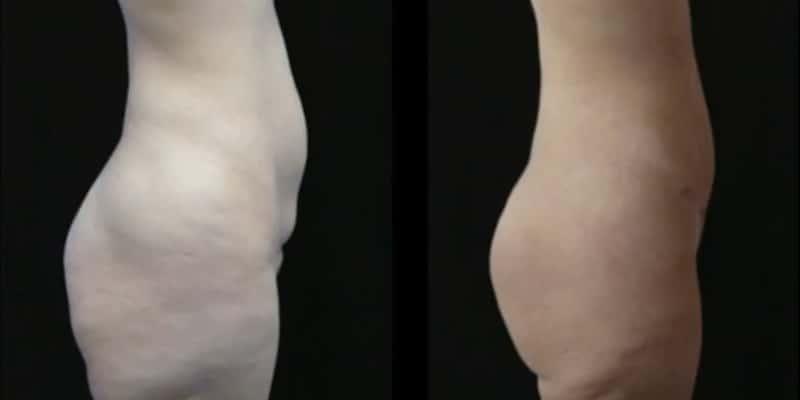 Liposuctie inainte si dupa caz 59-3