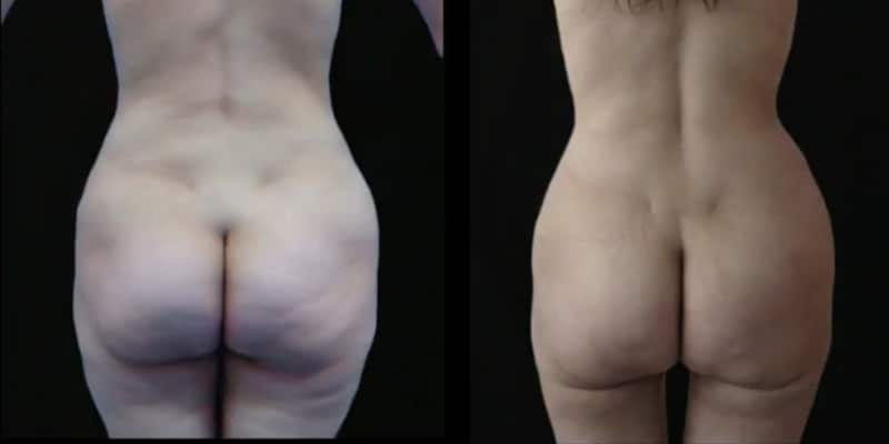 Liposuctie inainte si dupa caz 59-4