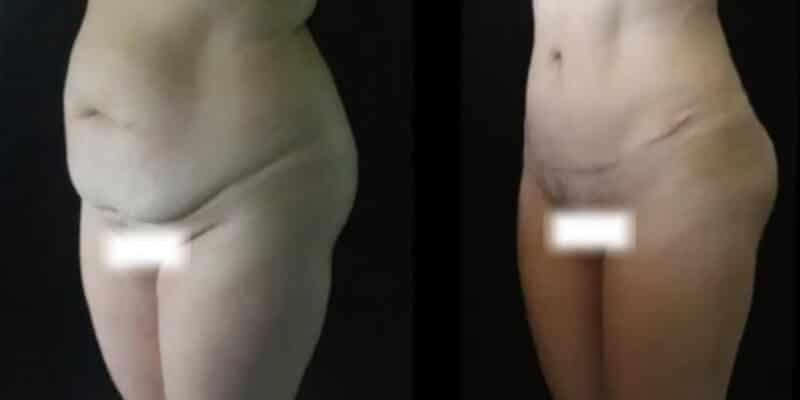 Liposuctie inainte si dupa caz 89-1