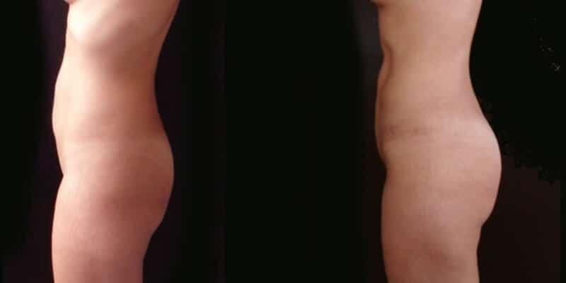Liposuctie inainte dupa caz 9-2