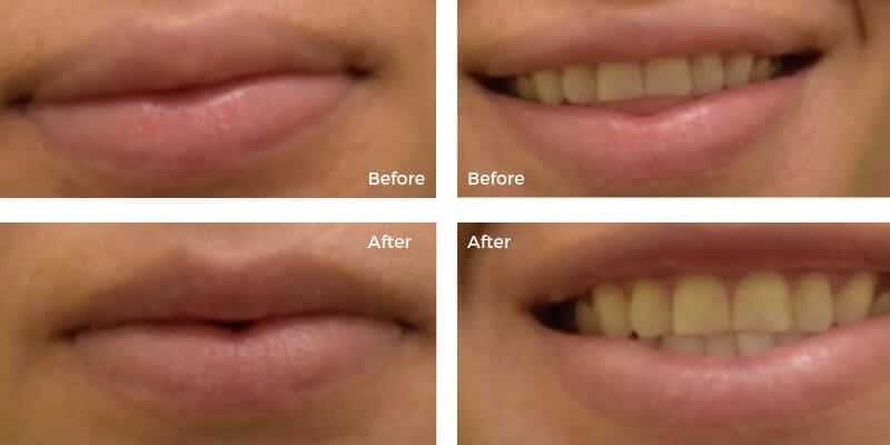foto micsorarea buzelor