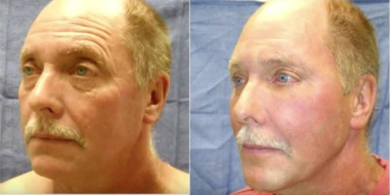 Rejuvenare faciala fara operatie caz 20