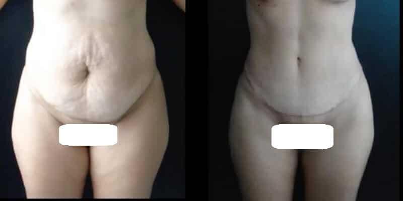 Chirurgia estetica a mamicii inainte si dupa caz 1-1