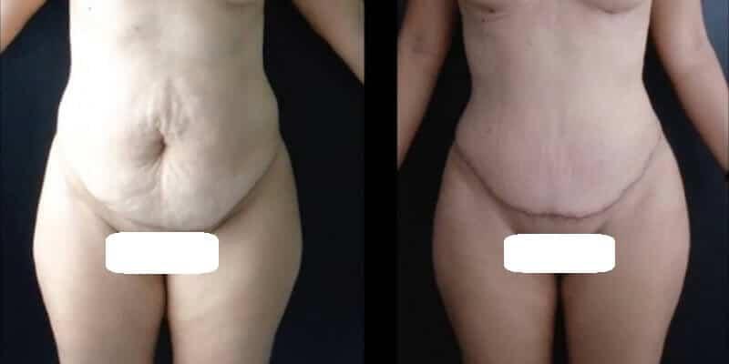 Chirurgia estetica a mamicii inainte si dupa caz 1-2