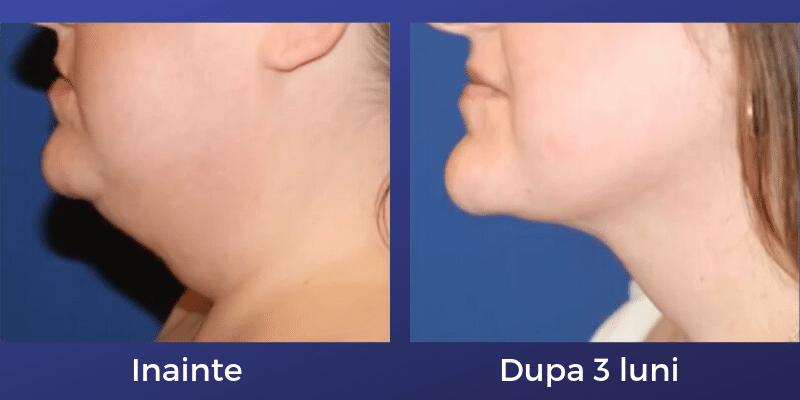 liposuctie barbie dubla cosmedica