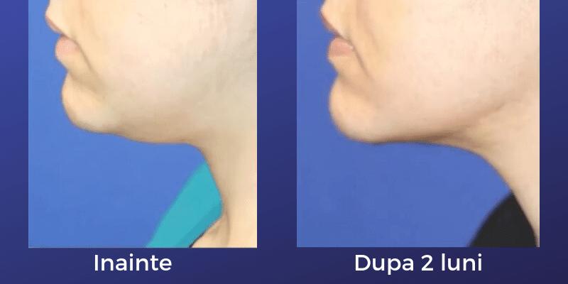 liposuctie barbie dubla femeie