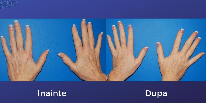 rejuvenarea mainilor femeie
