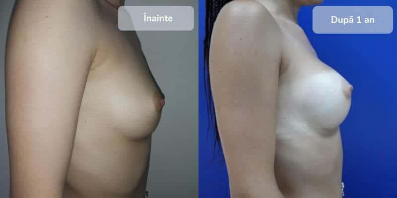 Marire sani implanturi inainte dupa