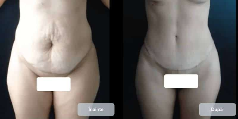 Chirurgia estetica a mamicii - galerie foto
