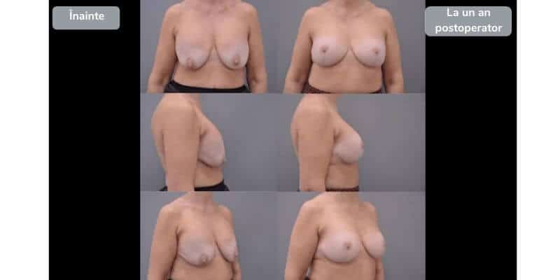 Revizie implanturi mamare - galerie foto