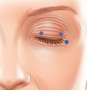 Tratarea Blefarospasmului la Cosmedica