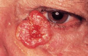 Carcinom bazocelular nodulo-ulcerativ