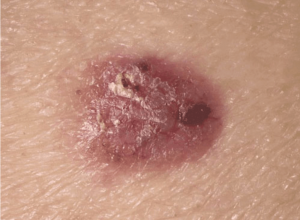 Tratament cancer piele