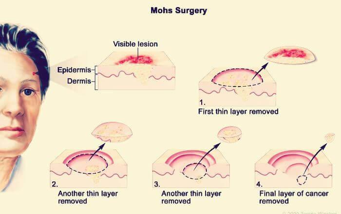 Operatie semne piele