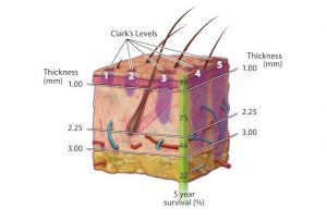 Tratament tumora piele