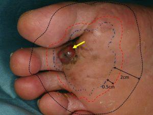 Operatie melanom malign