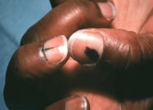 Pata unghie