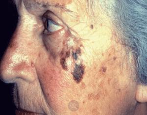 Tratament melanom malign