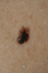 Melanom malign nodular
