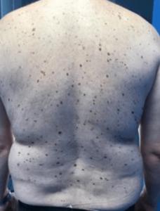 Tratament alunite piele