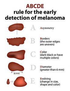 diagnostic melanom malign