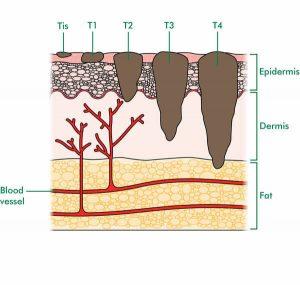 Tumora piele