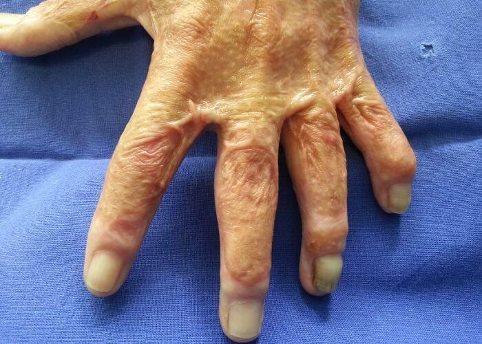 cicatrici hipertrofice la nivelul mainii