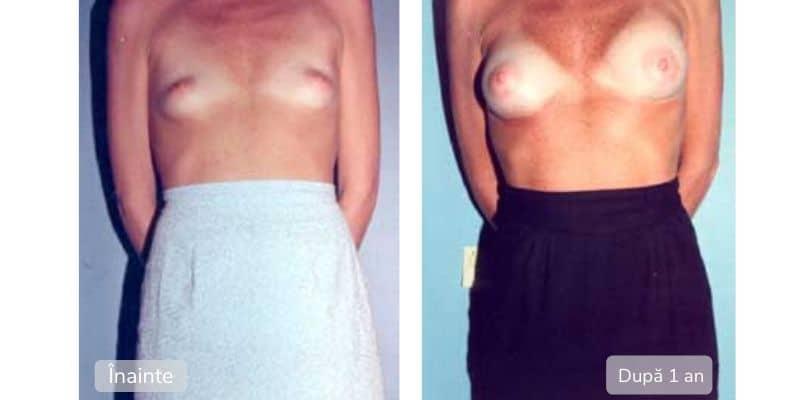 Marirea sanilor cu implanturi - Inainte Dupa