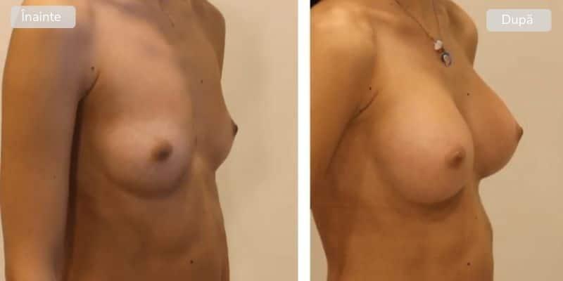 Implant mamar - inainte dupa