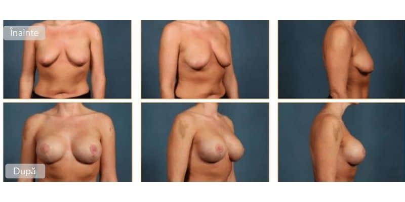 Ridicarea sanilor - Galerie foto
