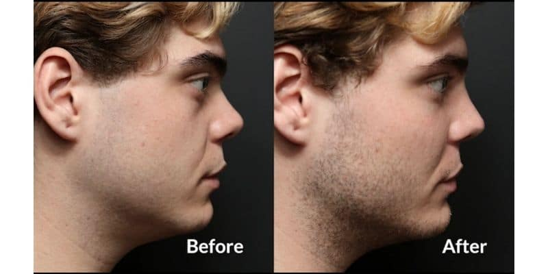 before after tratament cu acid hialuronic