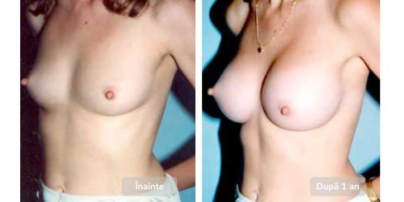 before after silicoane