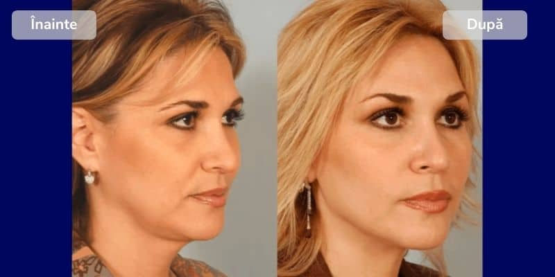 Before after facelift